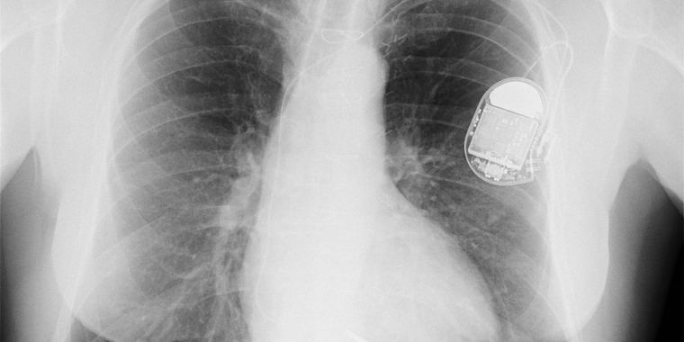 Critical Flaw Lets Hackers Control Lifesaving Devices Implanted Inside Patients
